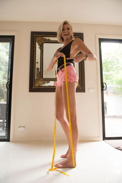 170123-world-longest-legs-07.jpg